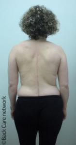 Φωτογραφία. Γυναίκα μετά την επέμβαση διόρθωσης σκολίωσης