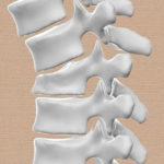Τρισδιάστατο μοντέλο κατάγματος σπονδυλικής στήλης