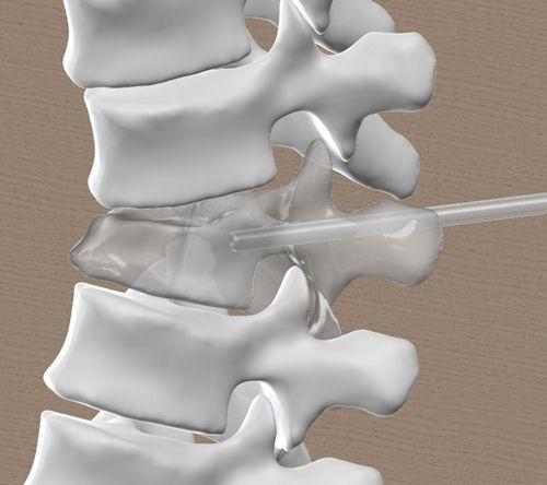 Τρισδιάστατο μοντέλο σπονδυλικής στήλης. Η βελόνα μπαίνει στον σπόνδυλο που έχει υποστεί το κάταγμα κατά τη διάρκεια της κυφοπλαστικής.