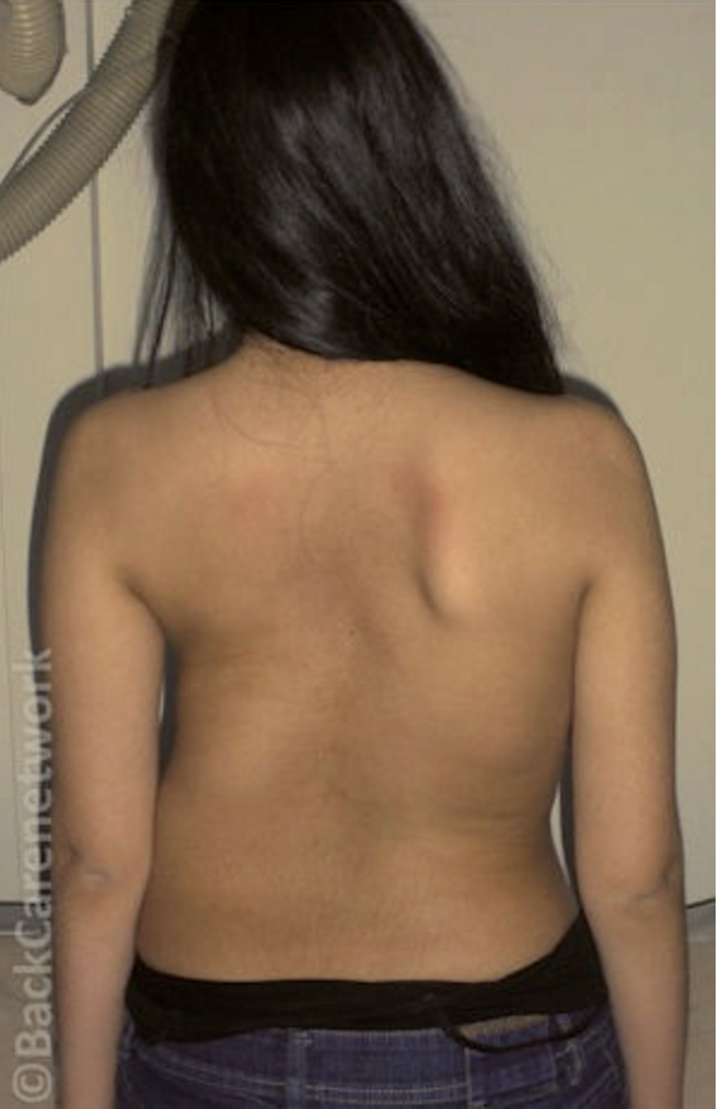 φωτογραφία κοπέλας 15 ετών με σκολίωση