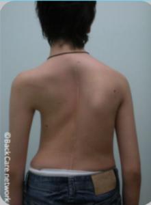 Αγόρι 18 ετών. Προεγχειρητική φωτογραφία διόρθωσης αποτυχημένου χειρουργείου σκολίωσης