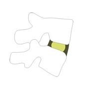 Φυσιολογικός μεσοσπονδύλιος δίσκος (σχήμα)