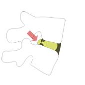Μικρή δισκοκήλη. Ρήξη ινώδους δακτυλίου μεσοσπονδυλίου δίσκου. Σχήμα