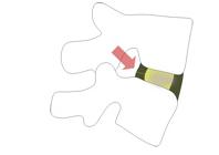 Σχηματικό διάγραμμα. Συρίκνωση του πυρήνα του μεσοσπονδυλίου δίσκου μετά την έγχυση discogel.